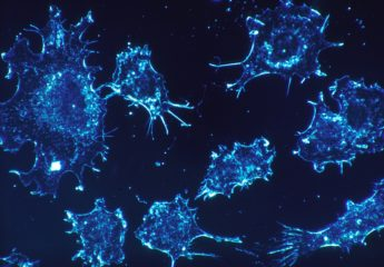 inhibits growth of prostate cancer cells Can you starve cancer to stop it