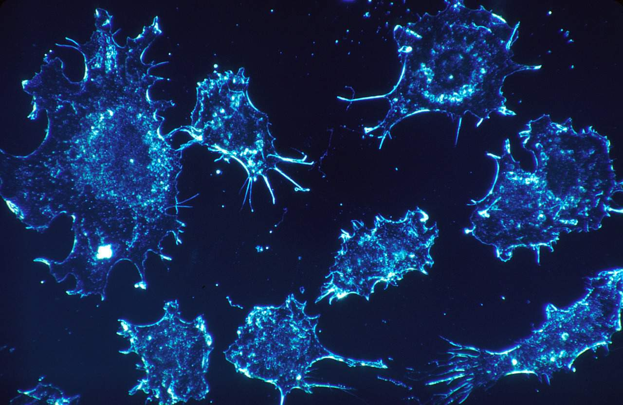 This Protein Stops the Growth of Prostate Cancer Cells