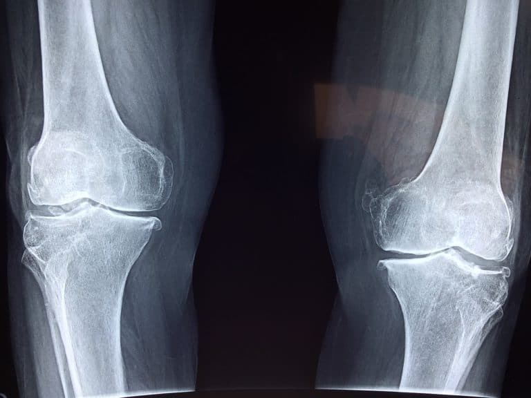 Prostate Cancer and Osteoporosis – What's the Link?