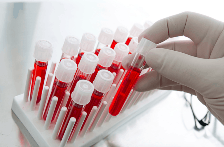 New Prostate Cancer Screening Test Could Reduce Biopsies