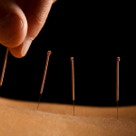 Can Acupuncture Improve Exercise Performance?