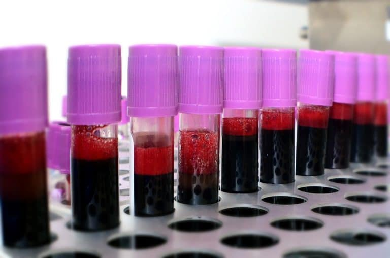 Liquid Biopsy for Prostate Cancer: Latest Research